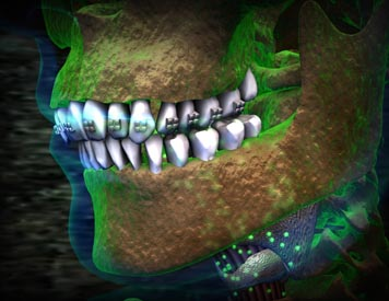 Braces Infection Atlanta Medical Animation